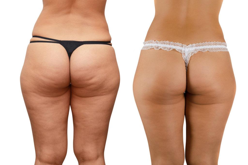 presoterapia antes y después resultados