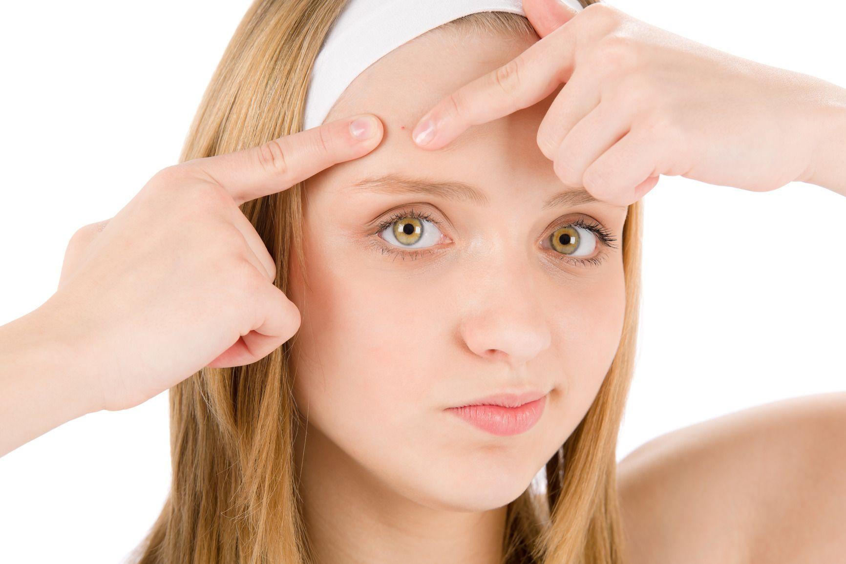 mascarillas para el acne como funcionan